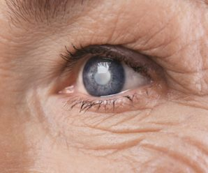 Some Facts about Cataracts You Should Know