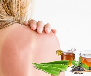 Easily Available Natural Remedies to Beat Sunburns